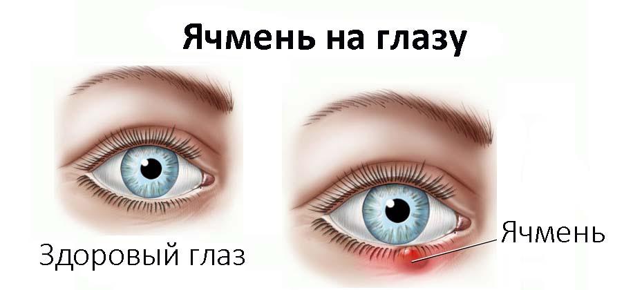 Лечение ячменя