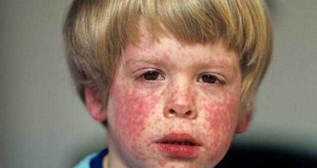 Ребенок болен корью Как проявляется у детей.