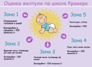 Показатели билирубина у детей