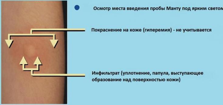 Как правильно измерять пробу Манту